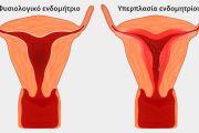 Υπερπλασία ενδομητρίου